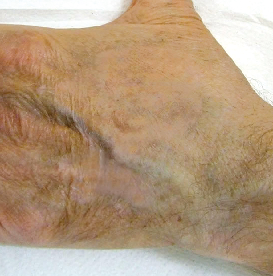 Dermopigmentazione paramedicale vitiliggine